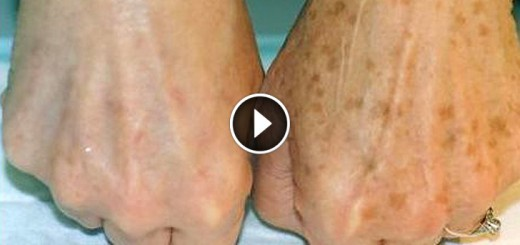 brown spots hand