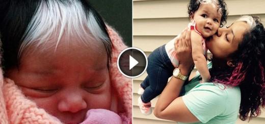 baby white streak hair